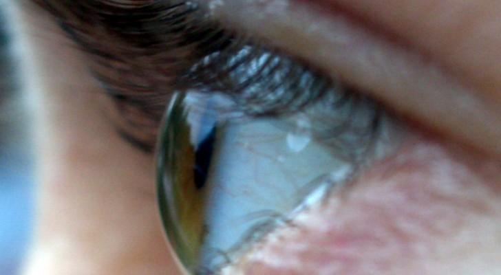 Terapia genica: 12 pazienti riacquistano la vista grazie a questa nuova frontiera medica