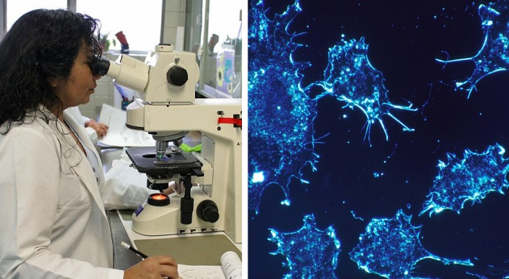 Nuovi scenari nella lotta contro il cancro: una donna viene guarita con l'immunoterapia