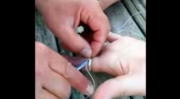 Enrola o fio dental em volta do dedo. Poucos segundos depois... Voilà!