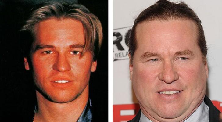 Les photos avant et après de 12 célébrités défigurées par la chirurgie plastique (et pas seulement)