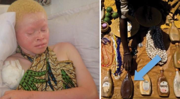 Die stille Jagd auf die Albinos: Das tragische Schicksal der