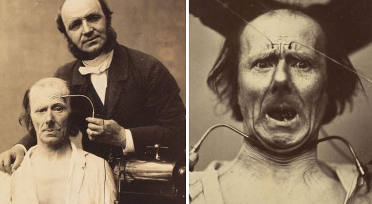 La genesi delle espressioni del volto umano: l'interessante studio di un neurologo francese del 1862