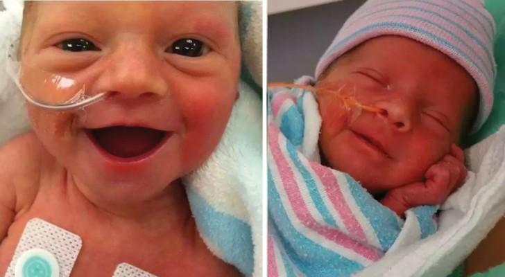 Les toutes premières images de bébés nés prématurés: leurs sourires sont un hymne à la vie