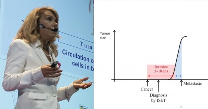 Repérer un cancer des années avant qu'il ne se développe: le test existe, mais les coûts sont prohibitifs