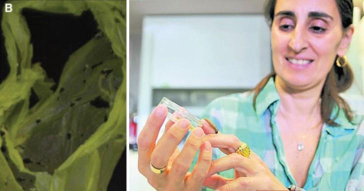 Une biologiste découvre par hasard un vers capable de manger le plastique