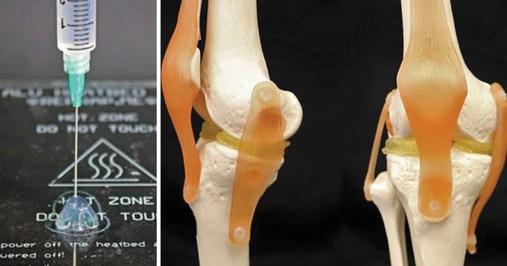 Stampare in 3D cartilagine compatibile col corpo umano: un nuovo materiale lo rende ora possibile