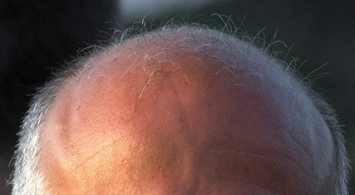 Ben je kaal? Dan ligt de