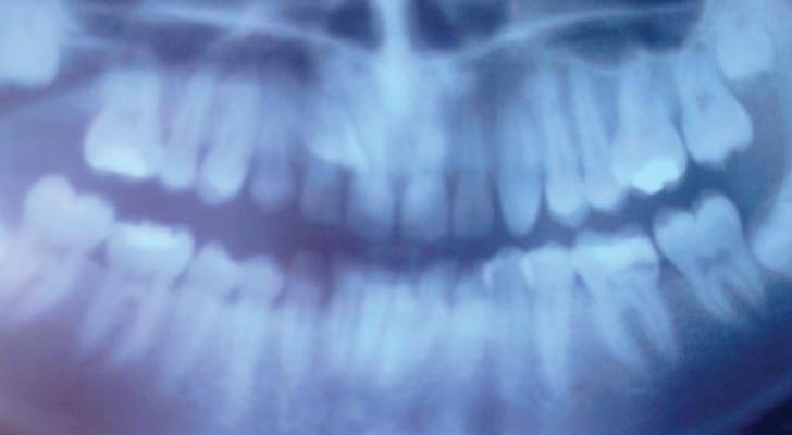 Vertigini, mal di schiena e problemi di postura: E se fosse colpa dei denti storti?