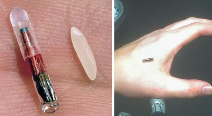 Ai dipendenti di un'azienda è stato proposto un chip sottopelle: la questione ha indignato il mondo