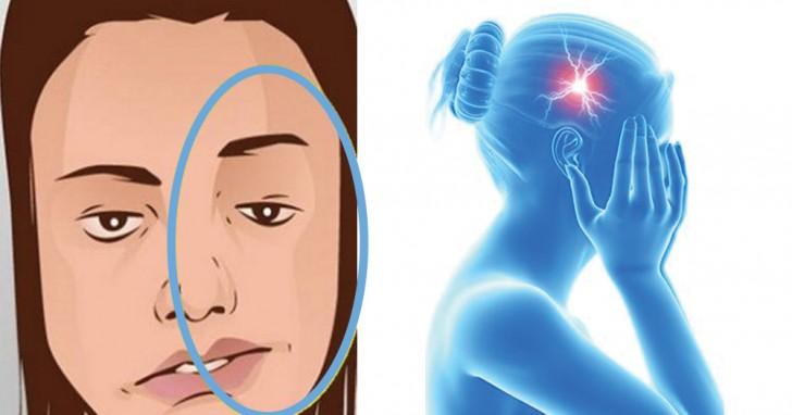7 Warnsymptome bevor sich der Schlaganfall manifestiert