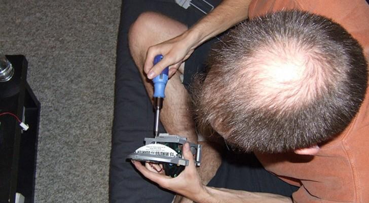 Wissenschaftler haben versehentlich ein Medikament entwickelt, das gegen Glatzen hilft