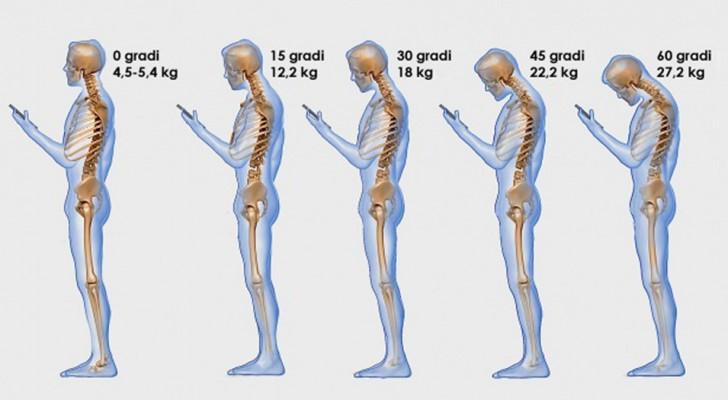 Schaust du häufig aufs Handy? Das tust du damit deiner Wirbelsäule an