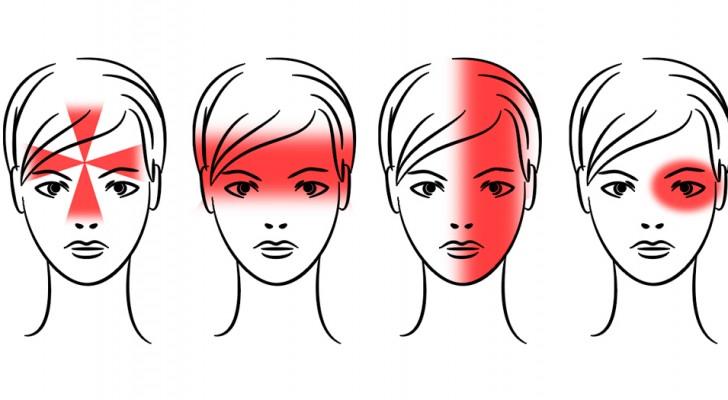 Che cos'è che causa il mal di testa e come puoi sbarazzartene