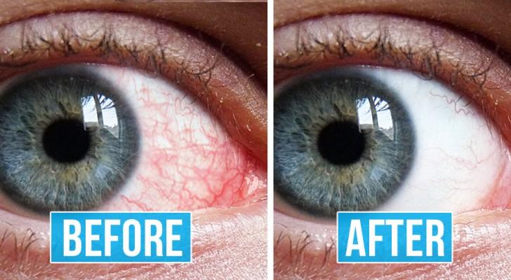 8 nützliche Übungen für müde und gerötete Augen