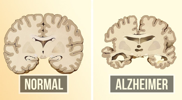 Vorbeugen von Alzheimer kann einfacher sein als Sie denken: Hier sind zwei Dinge, die Sie tun können