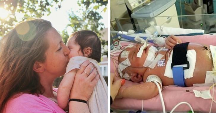 Non lasciare che tutti bacino il tuo bambino: ecco cosa è successo a questa neonata a causa di un bacio