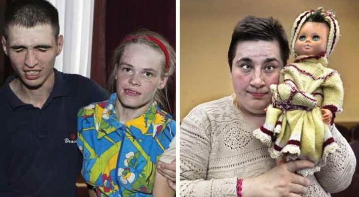 Tchernobyl 30 ans plus tard : voilà comment sont et comment vivent les victimes invisibles de la catastrophe.